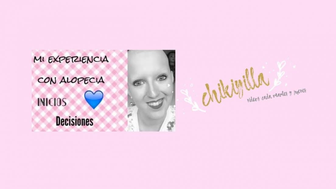 Mi experiencia con alopecia universal