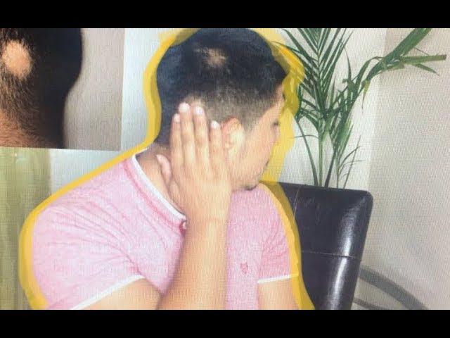 Cómo combatir la Alopecia Areata y volver a crecer tu pelo (mi historia)