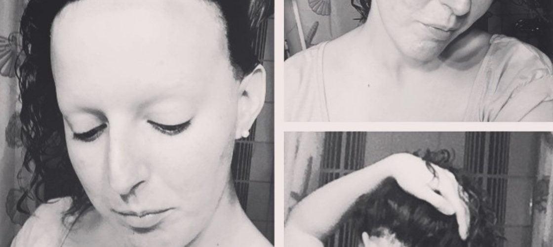 Alopecia areata universal