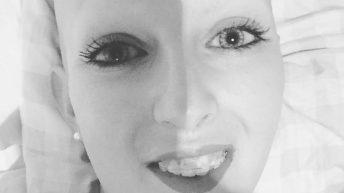 Mujer alopecia areata universal