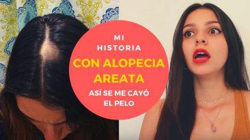 Alopecia Areata, consejos y solución.