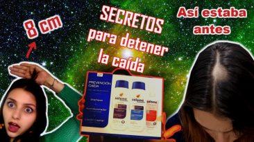 Alopecia areata, que shampoo usar y otros secretos.