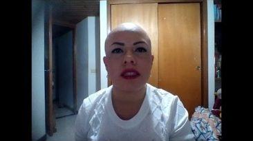 Alopecia Areata saludo para Shanovi