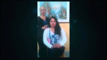 Apoyo Alopecia Areata Universal Angela Ruiz