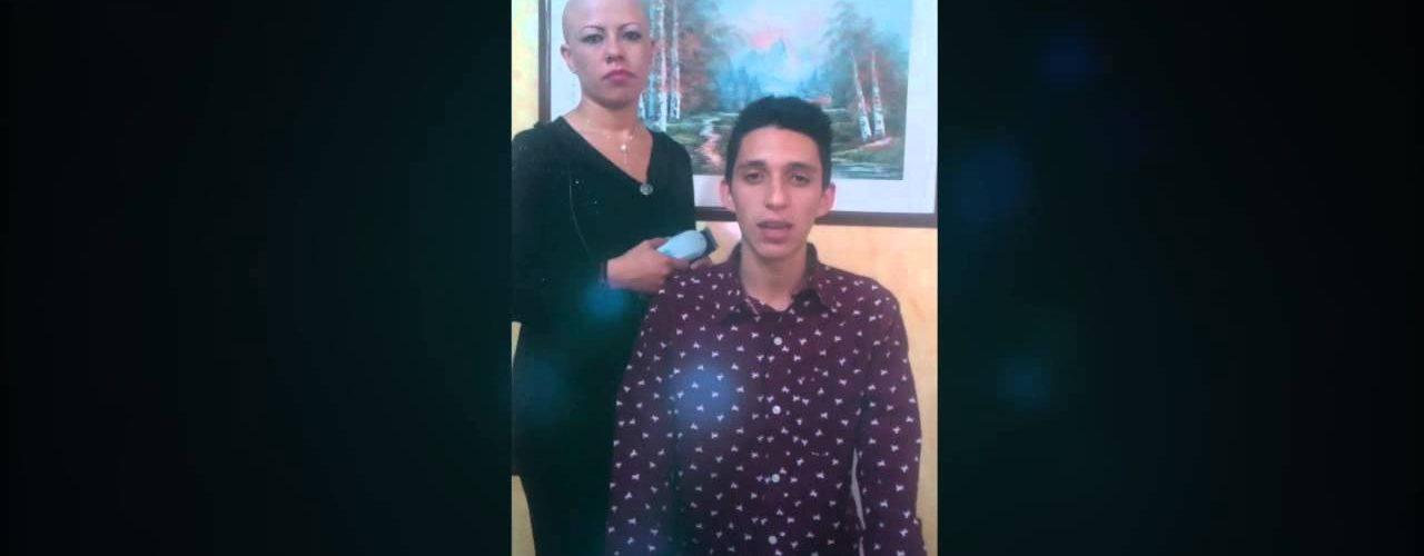 Apoyo Alopecia Areata Universal Brayan Castillo