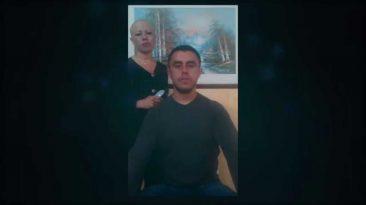 Apoyo Alopecia Areata Universal Nelson Moncada