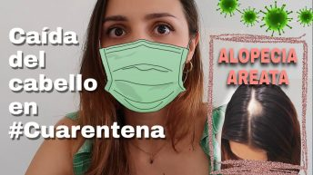 Caída del cabello en cuarentena | Alopecia areata