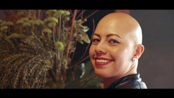 La Alopecia se convirtió en mi marca personal