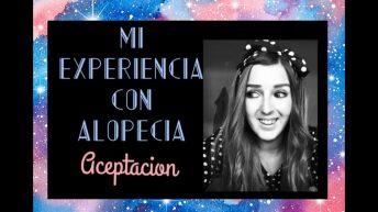 Mi experiencia con Alopecia Areata Universal – Aceptación