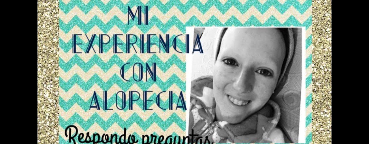 Mi experiencia con Alopecia Universal – Respondo preguntas