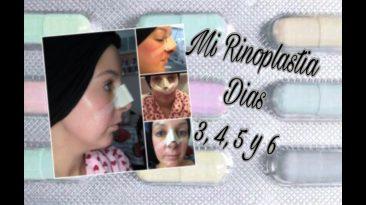 MI RINOPLASTIA- DIAS 3, 4, 5 y 6- DORSIA