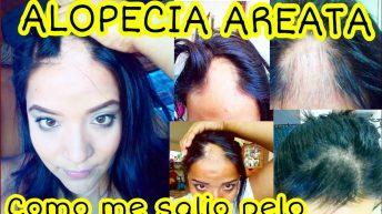Tengo alopecia Areata – como curar la alopecia – caida de cabello – calvicie – enfermedades