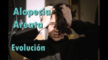 Vivir con Alopecia Areata | ¡EL PELO HA VUELTO!