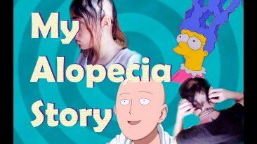 Vivir con Alopecia Areata | Experiencia personal, tratamientos y consejos